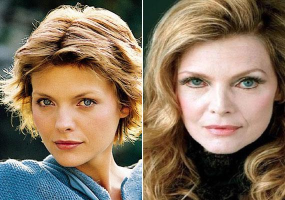 Michelle Pfeifferről köztudott, hogy azok közé a színésznők közé tartozik, akik nem vetik meg a plasztikai beavatkozásokat. Annyira retteg az öregedéstől, hogy lassan úgy fest, mint egy viaszbábu.