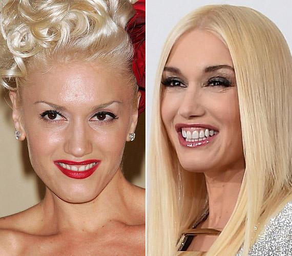Gwen Stefani az idei Emmy-gálán döbbentette meg a rajongókat kinézetével.