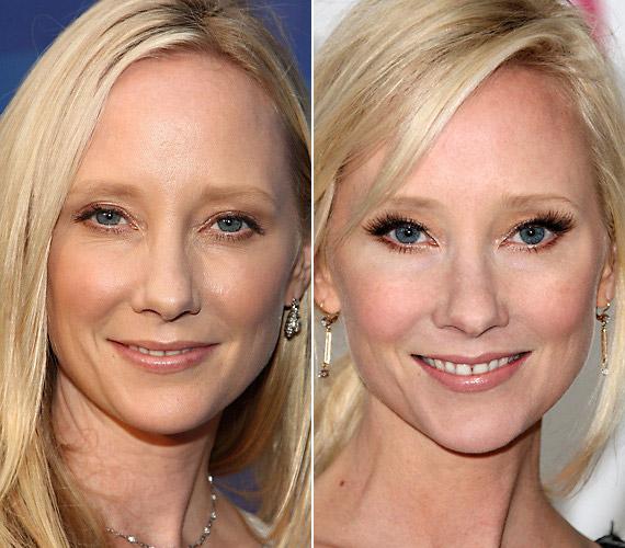 Anne Heche-nek 40 évesen is gyönyörű volt a bőre, érthetetlen, miért varratta fel az arcát, amitől még a szeme is megváltozott.