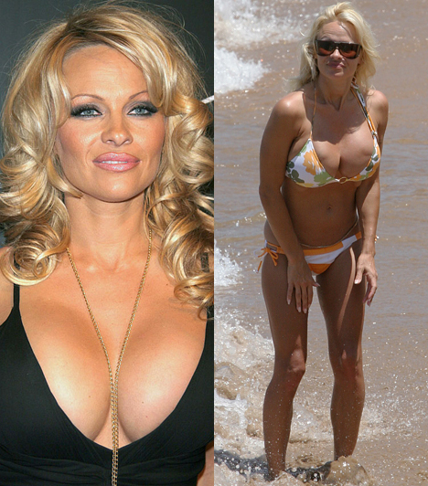 Pamela Anderson  A kilencvenes évek egyik legnépszerűbb nyuszilánya az évek során több alkalommal is felfújatta melleit. A bizarr torzulást látva azonban érthető, hogy végül kivettette melleiből az implantátumokat.  Kapcsolódó cikk: Pamela Anderson túl sokat mutatott magából »