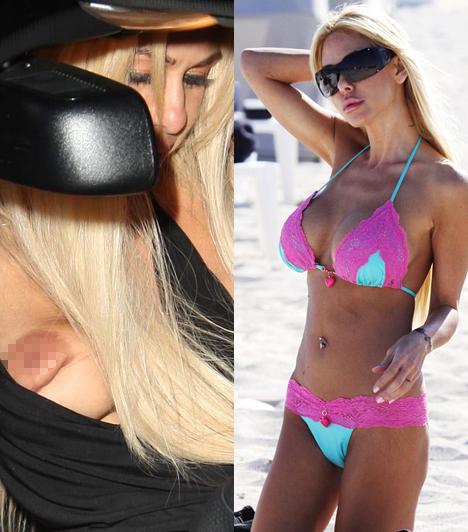 Shauna Sand  Vajon ki gondolná Lorenzo Lamas exfeleségéről, hogy bikinije egy ilyen elképesztő csúfságot rejt? Elbaltázott melle úgy fest, akár egy üres tejeszacskó, azon pedig csak csodálkozni lehet, hogy Sand egykor a Playboy-ban pózolt.  Kapcsolódó cikk: Szörnyen szétszabták Shauna Sandet »