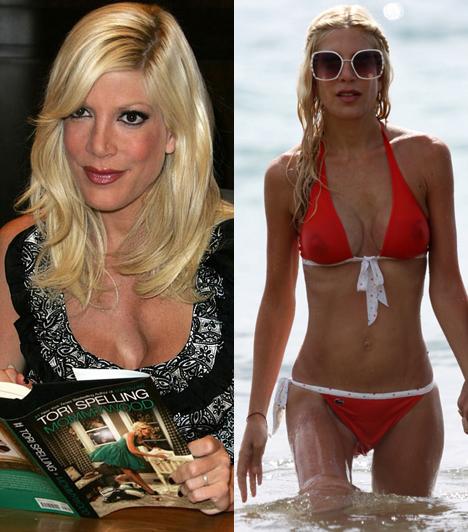Tori Spelling  A népszerű sorozatsztár is kés alá feküdt, hogy megnagyobbítsa mellét, iszonyatosan behorpadt dekoltázsát minden bizonnyal egy botkezű plasztikai sebész kontár munkájának köszönheti.  Kapcsolódó cikk: Tori Spelling terhesen bújt bikinibe »