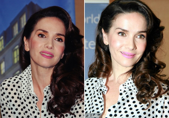 Egyre jobban kezd jégkirálynőre hasonlítani a színésznő, ha így folytatja, teljesen eltűnik a mimikája.