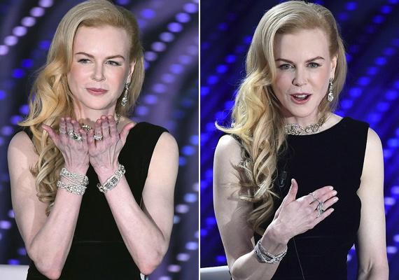 A gúnyos megjegyzések sem maradtak el, sokan beszóltak a színésznőnek, hogy a ráncos kezeit is plasztikáztatnia kellene, ha már 20 évesnek akarja mutatni magát.