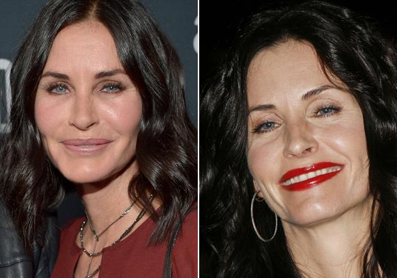 A Jóbarátok egykori sztárja, a Monica Gellert alakító Courteney Cox arca is eltorzult a botoxtól. A színésznő úgy fest, mint egy viaszbábu.