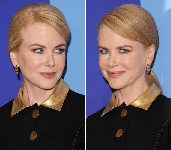 A botoxtól alig tudja használni a mimikáját, még mosolyogni is nehezen tud.