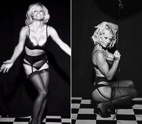 Úgy tűnik, Pamela Anderson ismét plasztikai sebésznél járt és újabb nagyobb kebleket kért.