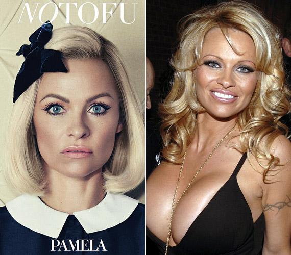 Igazán iskoláslány kinézetet kölcsönöztek neki a fotózás erejéig. A jobb oldali képen még a mellkisebbítő műtéte előtt látható.