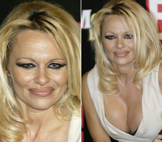 - Én vagyok az utolsó, aki kipróbálná a botoxot, mégis megtettem. Úgy éreztem, a szemeim besüllyedtek a fejembe, és hogy többé már nem tűnök önmagamnak. Úgyhogy nem vagyok ebben már benne - mondta Pamela Anderson, aki valóban szörnyen festett néhány éve, a kezelések után.