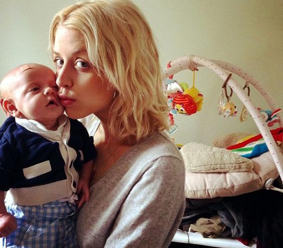 Valószínűleg nem ez volt a baba első balesete, ezen a fotón is ragtapasz van a kicsi homlokán.