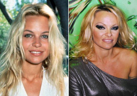Pamela Anderson azért feküdt kés alá, hogy szilikonmelleivel kivívja magának a szexszimbólum elnevezést. Aztán a sebész kése már nem csak a mellkasát szabta át, hanem jószerével minden porcikáját.