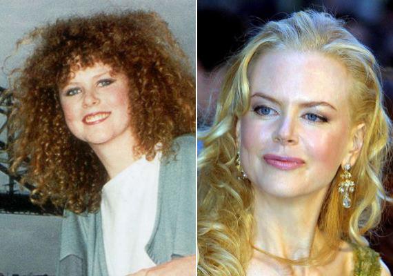 Nicole Kidman saját bevallása szerint is átesett a ló túloldalára, és a botoxtól megbénultak az arcizmai is.