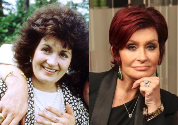 Sharon Osbourne egy átlagos nőből szabatta át magát, de talán túl feszesre sikerült az arcbőre.