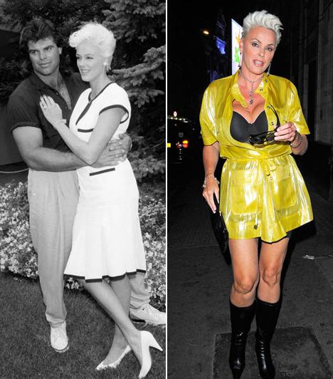 Brigitte Nielsen  A színésznőnek egy német csatorna üzletet ajánlott: a plasztikai műtétek minden költségét állják, ha levetíthetik adásban. Nielsen elfogadta az ajánlatot, így leszívták róla a zsírt, botoxot fecskendeztek a bőrébe, és helyreállították kebleit. Kapcsolódó címke: Brigitte Nielsen »