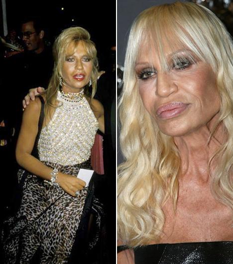 Donatella Versace  A Versace vezető divattervezője nem sajnálta a pénzt a szépészeti beavatkozásokra, a számtalan plasztika miatt úgy néz ki, mint egy férfi.  Kapcsolódó címke: Donatella Versace »