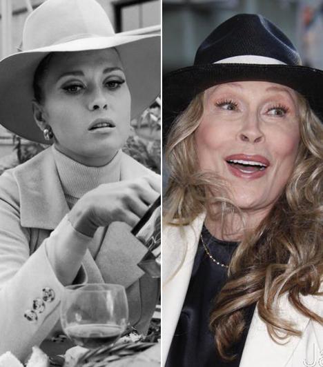 Faye Dunaway  Az Oscar-díjas színésznő egykoron Hollywood legszexisebb sztárjai közé tartozott, ám vesztére ő is úgy döntött, kés alá fekszik. Bizarr arcát látva már rá sem lehet ismerni az egykori bombázóra.  Kapcsolódó címke: Faye Dunaway »