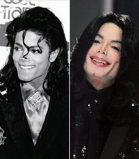 Michael Jackson  A pop királya 2009. június 25-én délután szívrohamban elhunyt. Megszámlálhatatlan plasztikai műtéten esett át - sokan a szépészeti beavatkozásokat végző orvosokat teszik felelőssé a gigasztár haláláért.  Kapcsolódó címke: Michael Jackson »