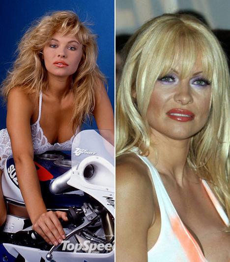Pamela Anderson  A nyolcvanas-kilencvenes évek legdögösebb nyuszilánya rengeteg műtéten esett át, az implantátumok hol ki-, hol bevándoroltak kebleibe az évek során.  Kapcsolódó címke: Pamela Anderson »