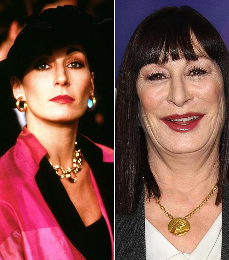 Anjelica Huston                         A Prizzik becsülete és az Addams family sztárjának szépsége már a múlté, eldeformálódott arcával sokkal inkább hasonlít a Star Wars Jabbájára, mint egykori önmagára.