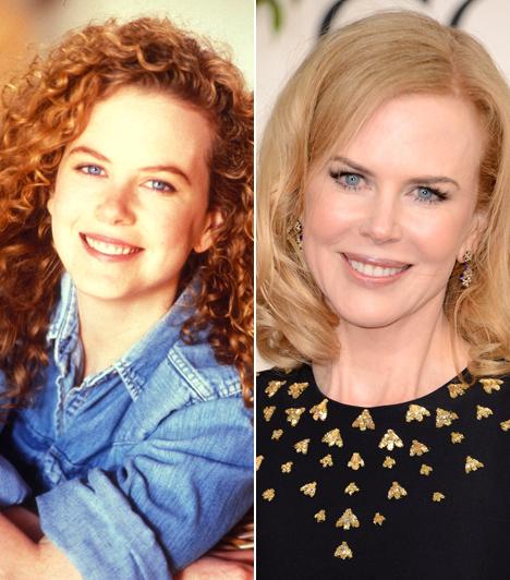 Nicole KidmanNem bír lemondani a botoxról, pedig az arcidegei már annyira károsodtak, hogy egyáltalán nincs mimikája.Kapcsolódó cikk:Nem állt le a botoxszal! Nicole Kidman viaszbábúvá műtette magát