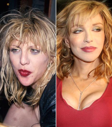 Courtney LoveEgykoron nyugodt szívvel zenélhetett topless is a színpadon, mára - elrontott plasztikái, és élete okán - a szellemvasút egyik sztárja lehetne.