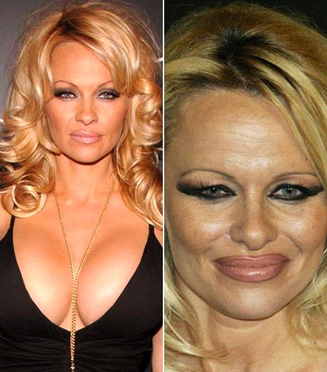 Pamela AndersonAz egykori Baywatch-cica több beavatkozást is végeztetett, végül mindegyiket megbánta. Hatalmas kebleitől is megszabadult.Kapcsolódó cikk:Kellett neki plasztika! Eltorzult a népszerű színésznő arca