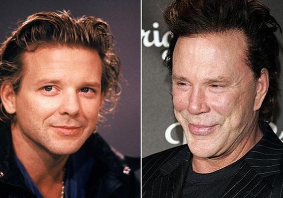 Sajnos a 62 éves Mickey Rourke lett a férfiak esetében a hollywoodi arcplasztika mélypontja. A hajdanvolt kisfiúsan huncut fizimiskát mára felismerhetetlenné szabták. Érte igazán kár.