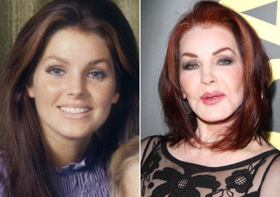 Az egykor bájos arcú szépség így megváltozott a műtéteknek köszönhetően. Nem csoda, hogy idejekorán kénytelen volt felhagyni a színészkedéssel - teljesen eltűnt az arcmimikája.