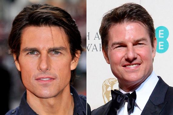 Mindenki ledöbbent, mikor Tom Cruise megjelent a tavalyi BAFTA-gálán, ugyanis a színész úgy festett a botoxinjekcióknak köszönhetően, mint egy hörcsög, annyira felpuffadt az arca.