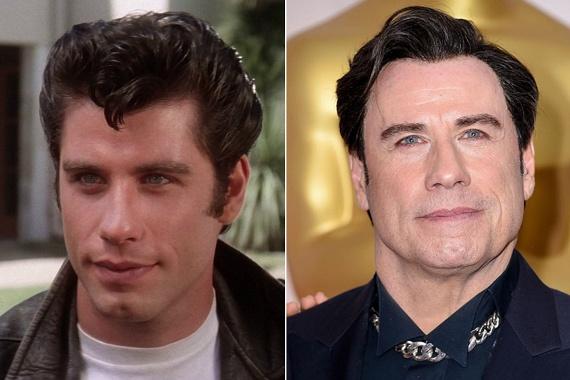 A Grease után lányok milliói rajongtak John Travoltáért. A színész nem bírta elviselni az idő múlását, így plasztikáztatni kezdett: mára úgy fest, mint saját viaszszobra.