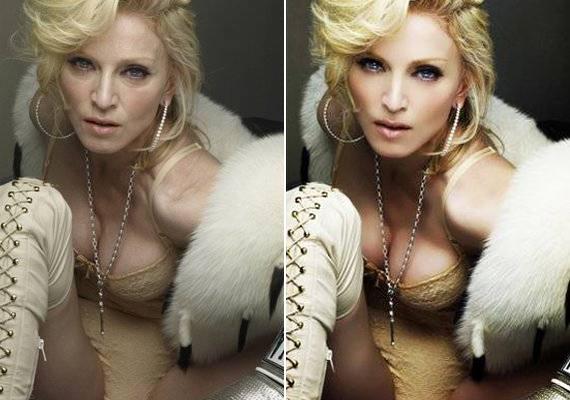 Bár Madonna előszeretettel botoxoltat, Photoshop nélkül messze nem olyan sima a bőre.