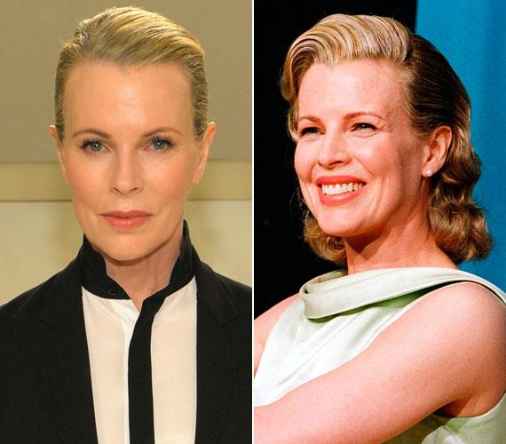 Lassan 20 éve lesz, hogy a 61 éves Kim Basinger 1998-ban megkapta a legjobb női mellékszereplőnek járó Oscart a Szigorúan bizalmasban nyújtott alakításáért (jobb oldali kép), de az arca sok botox miatt még ma is ugyanolyan sima.