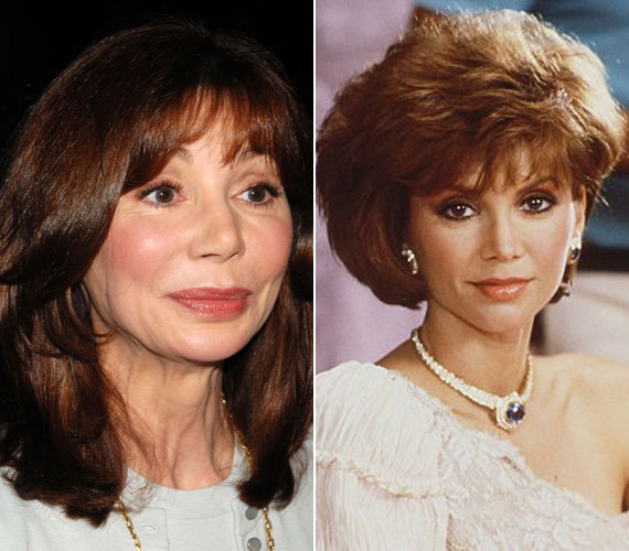 A 65 éves Victoria Principal, a Dallas Pamelájaként a nyolcvanas években nőideál volt, de miután 1985-ben összeházasodott Hollywood egyik legismertebb plasztikai sebészével, sajnos nem tudott leállni a szépészeti beavatkozásokkal.