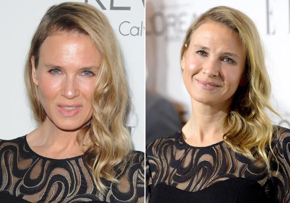 Renée arca szinte felismerhetetlenné vált plasztikai műtétjét követően. Rajongói szerint nagyon elcsúfította magát a színésznő, de ő csak legyintett; azt mondta, pontosan ezt a hatást akarta elérni.