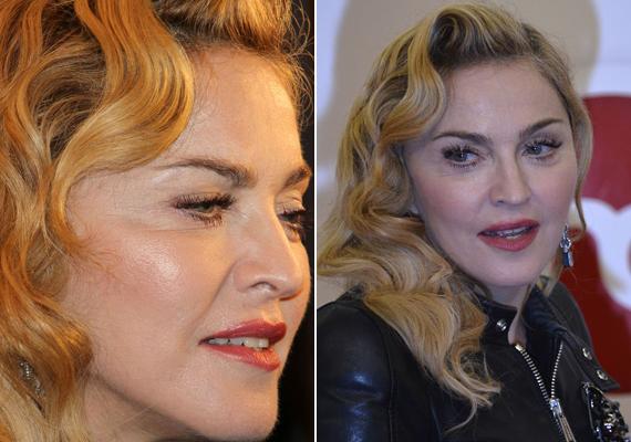 Madonna sem tud méltósággal megöregedni, arcán jól kivehető az inplantátum formája is.