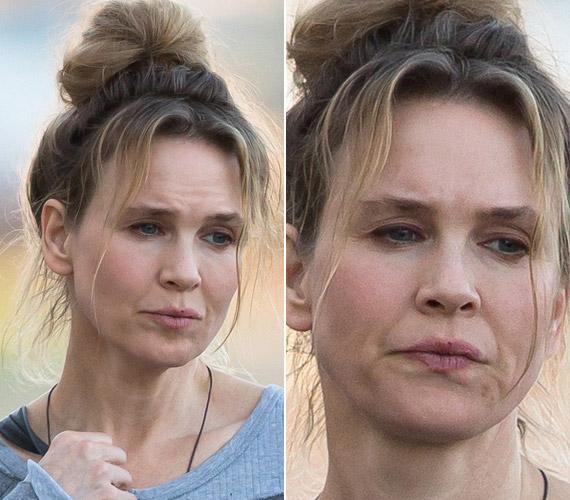 Plasztikai sebészek nyilatkoztak arról, milyen műtéteken esett át a színésznő: felvarrták a szemhéját, így nagyobb lett a szeme, valamint az arca tele van botoxszal.