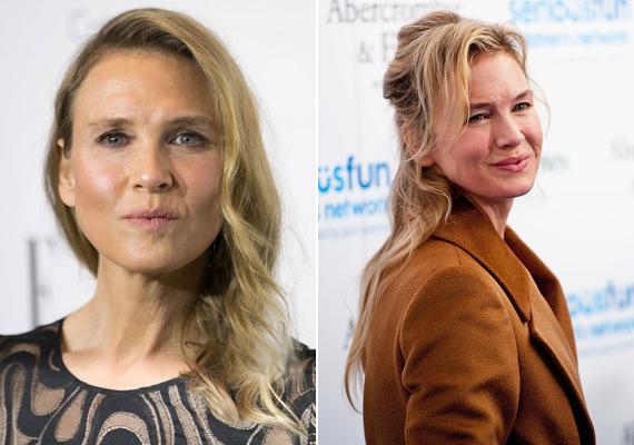 Szinte megfagyasztották a plasztikai sebészek az arcát. A botox szerencsére lassan felszívódik, így megint a régi lesz a színésznő arca.