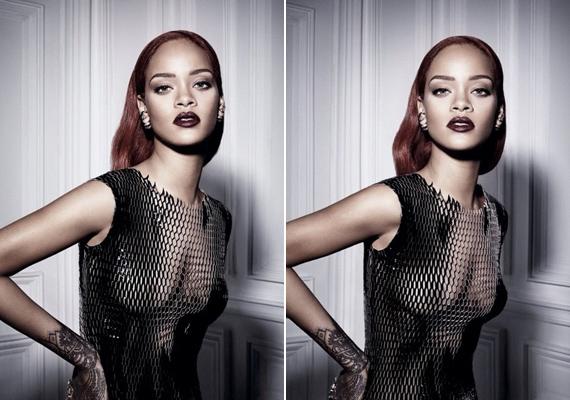 Az énekeső sosem szégyellte a testét, nem csoda, ha a fotós szeme is megakadt Rihanna bájain. A ruha egyébként rafinált darab, hiszen a kész képek roppant ízlésesen sikerültek.