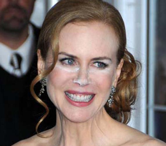 Nicole Kidman is járt már úgy, mint kolléganője, csak ő furcsa mosolyával még többet rontott a helyzeten.