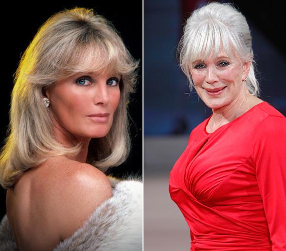 Linda Evans a Dinasztia sorozat csinos főszereplőjeként hódította meg a képernyőt a nyolcvanas években, 1981 és 1989 között. Ezt követően még vagy tíz évig láthatták a nézők néhány tévéműsorban, de 1997-ben visszavonult, és a fitnesz felé fordult, akkoriban több fitnesztermet is megnyitott. Emellett pedig a fotója alapján tagadhatatlan, hogy nem egyszer a plasztikai sebész kése alá feküdt, aminek eredményeképpen most, 74 éves korában ijesztően néz ki.