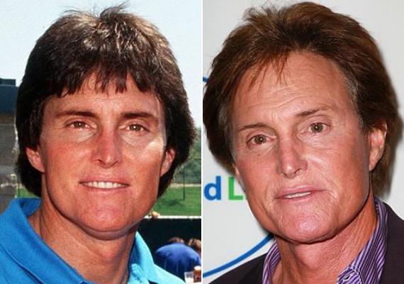 Bruce Jenner először 1984-ben szabatta át az orrát, majd szépen lassan mindent.
