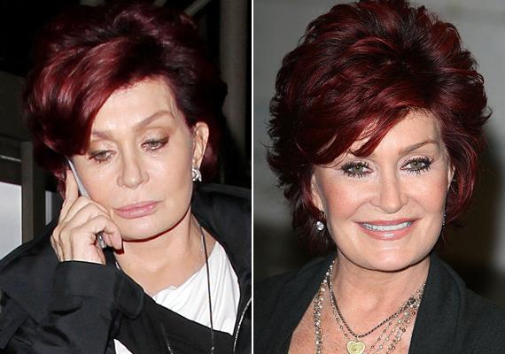 Sharon Osbourne szája látványosan megdagadt a sok szilikontól.