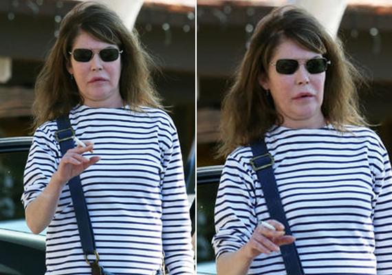 Lara Flynn Boyle arca kezd szétesni a sok beavatkozástól.