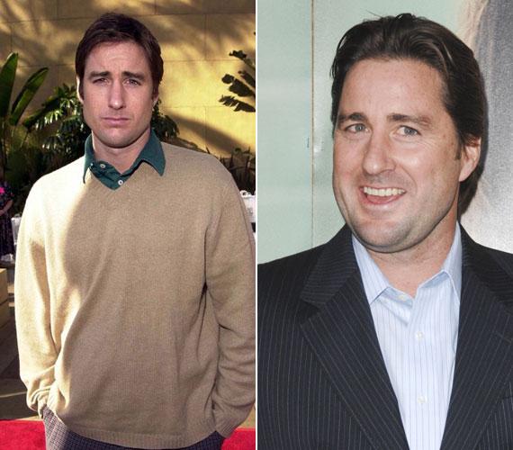 A tetemes testsúlyfeleslegnek köszönhetően nagyon megváltoztak Luke Wilson arcának vonásai.