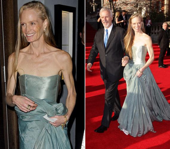 Miután levonultak a Claridges Hotelből, a vörös szőnyeg kontrasztjában nem lehet nem észrevenni Suzy Amis kiálló csontjait és inas karját.