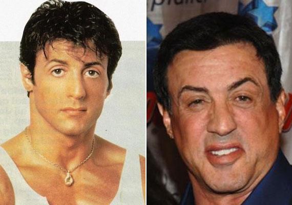 Bár ne feküdt volna kés alá Sylvester Stallone! A 69 éves sztár a plasztikától már a szemeit is alig tudja nyitva tartani.