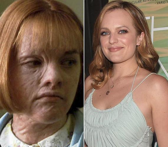 Elisabeth Moss színésznő - manapság a Reklámőrültek sorozatban látható - arcára az Angelina Jolie főszereplésével készült Észvesztő kedvéért kerültek a csúnya hegek. Egy tűzvészt túlélt lányt alakított az 1999-es filmdrámában, ami egyébként meghozta Jolie-nak az Oscar-díjat is.