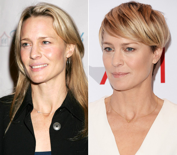 Sean Penn exe, Robin Wright is szinte csak a haja hosszát változtatta, más különbséget nemigen lehet felfedezni a két kép között, pedig az első 2005-ben készült. A 48 éves színésznő azok közé tartozik, akik bevallják, hogy rendszeresen botoxoltatnak - és véleménye szerint, ahogy az E!Online-nak adott interjújában korábban kifejtette, mindenki ezt csinálja Hollywoodban.