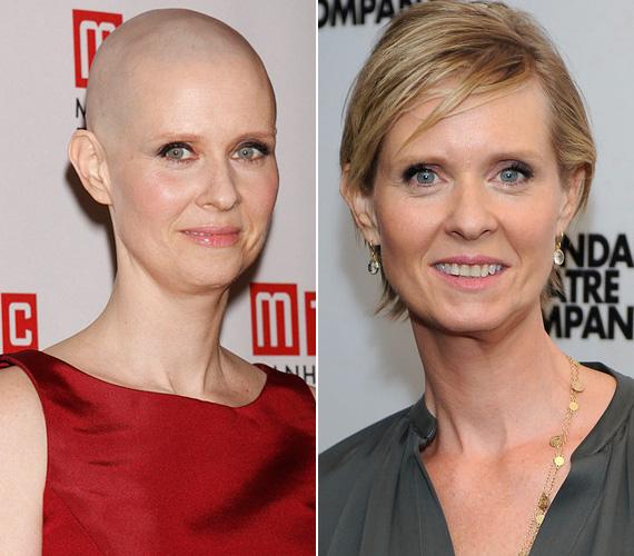 A Szex és New York egykori sztárja, Cynthia Nixon egy rákbeteg költészetprofesszor megformálása miatt vágatta kopaszra a haját 2012 januárjában. Mivel nem filmről, hanem színdarabról volt szó, a 45 éves színésznő elárulta, minden este borotválnia kell, hogy ne legyen borostás a feje. A darab abban az évadban volt műsoron, azóta ismét megnőtt a haja.