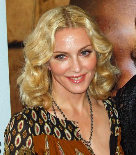 MadonnaA pop királynője 2009 áprilisában Steven Klein fotóművész South Hamptoni birtokán esett le egy lóról, miután az állat megvadult egy lesifotóstól. Madonnát kórházba szállították, de kisebb sérülésekkel megúszta a balesetet.